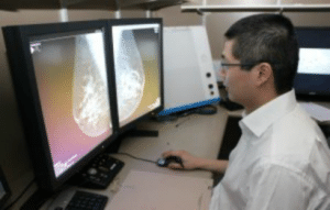 Measuring breast density