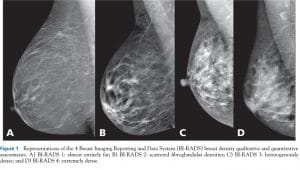 What To Expect From Your First Mammogram Prevent Breast Cancer