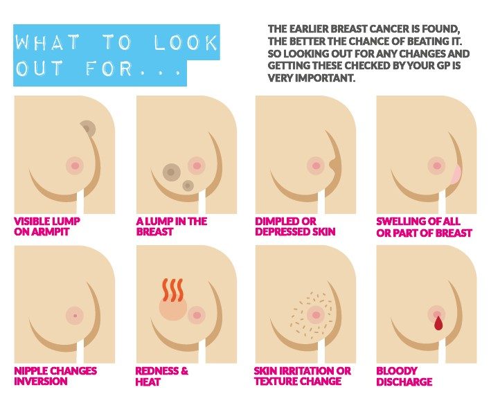Signs And Symptoms Of Breast Cancer Prevent Breast Cancer